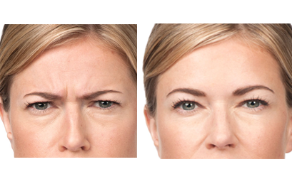 NYC botox treatments