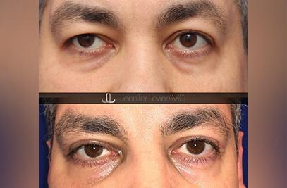 Blepharoplasty ny
