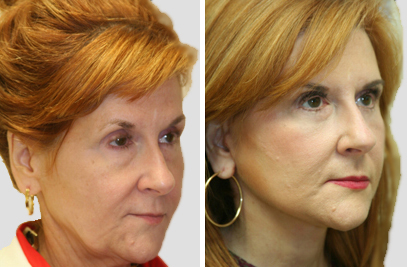 Facelift New York