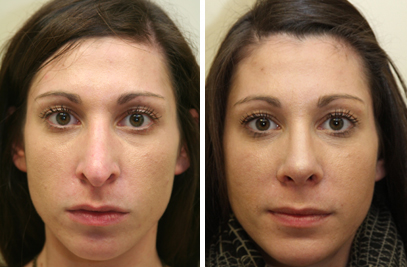 Rhinoplasty Treatment NY