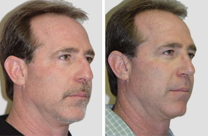 Rhinoplasty Procedure NYC