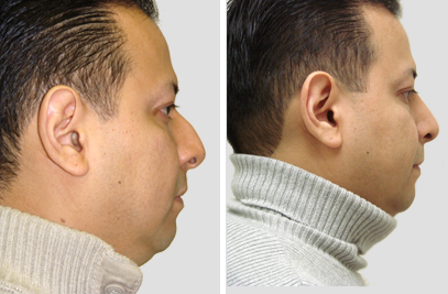 New York Rhinoplasty