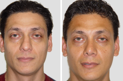 New York City Rhinoplasty