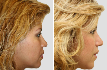 Rhinoplasty Surgery NY