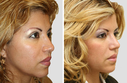 Rhinoplasty Surgeons NY