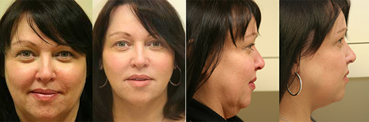 ultherapy treatment before and after