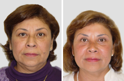 Blepharoplasty new york