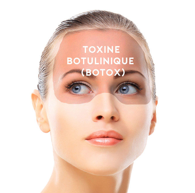 Botox Procedure NYC