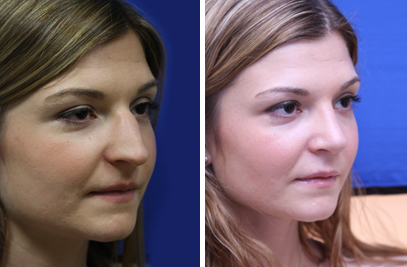 Rhinoplasty New York City