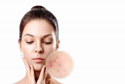 Acne treatment ny